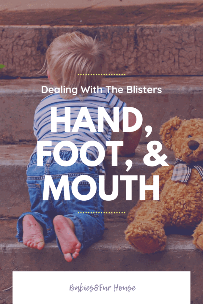Hand, Foot, and Mouth Disease: Controlling Blisters #HFMD #HFM